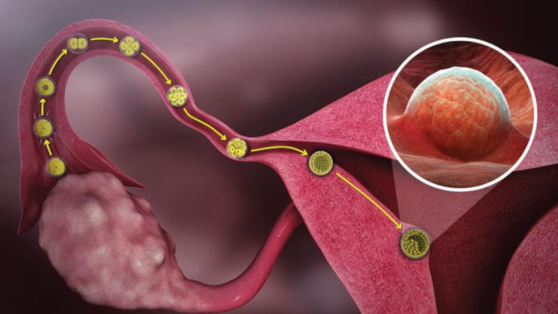 Запушени маточни тръби - възможно ли е забременяване?